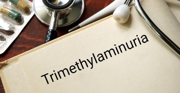Causes, Symptoms, and Treatments of Trimethylaminuria