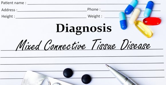 Mixed Connective Tissue Disease: An Autoimmune Overlap Disease