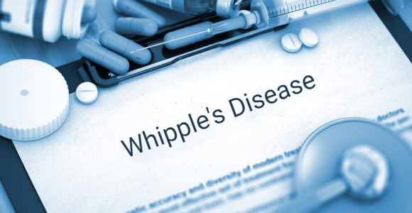 A Bacterial Infection Leads to Whipple's Disease