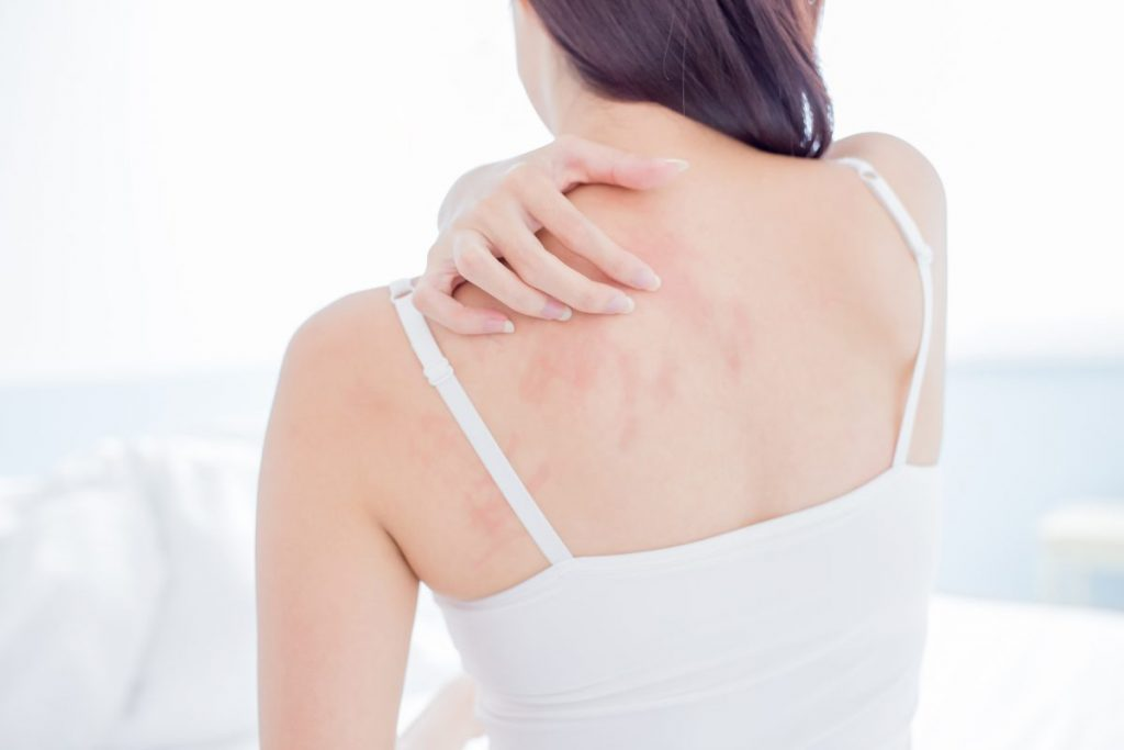 Itchy Rash Bed Bugs