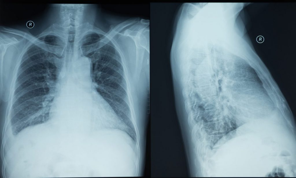 thoracentesis clotting xray