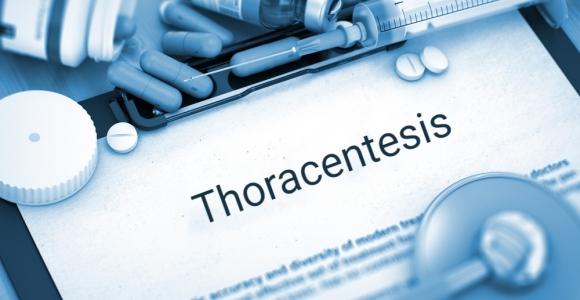 Understanding Thoracentesis