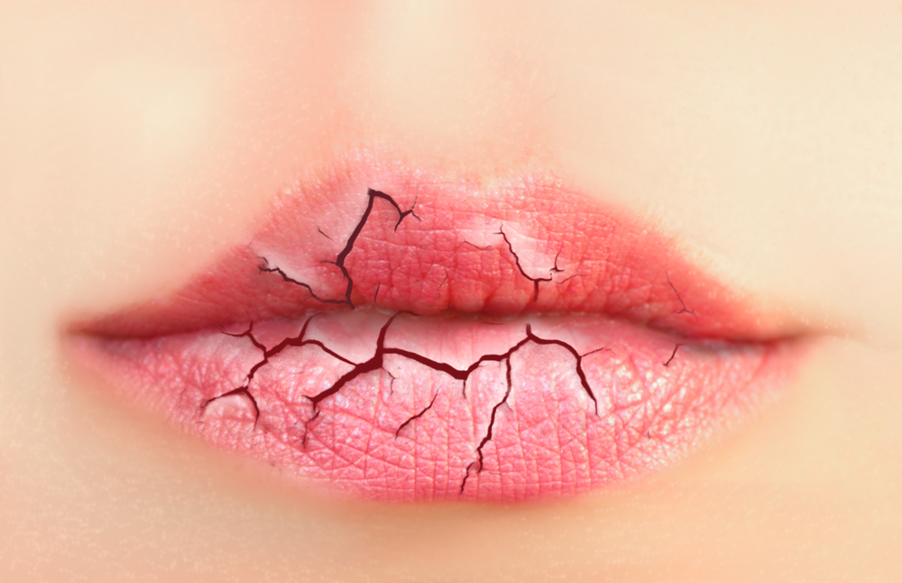 Causes of Chapped, Dry Lips and How to Treat Them