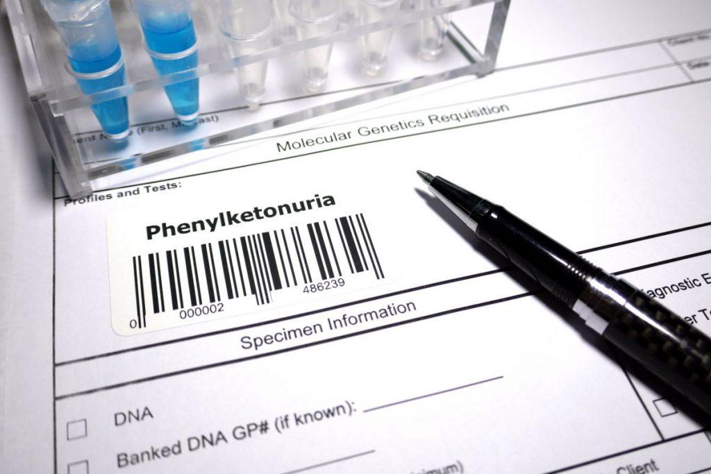 phenylketonuria phenylalanine amino acid