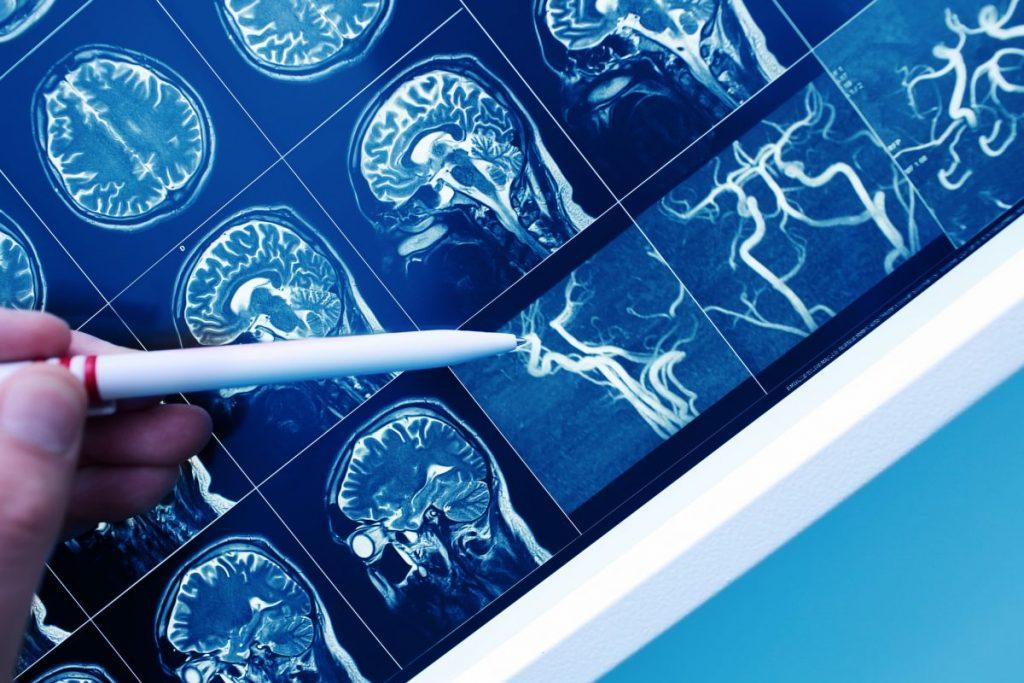 nerves, brain, Alzheimer's disease,