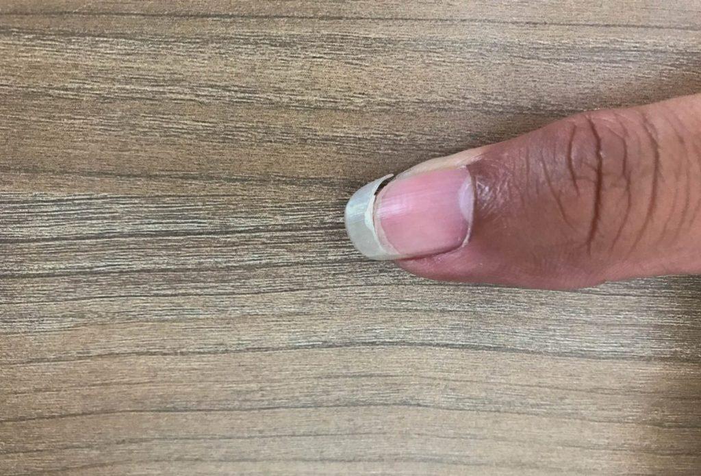 hair loss brittle nails