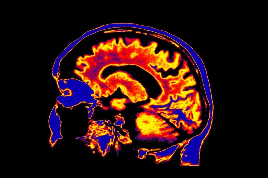 schizophrenia, depression, neurotransmitters, anti-psychotic, brain