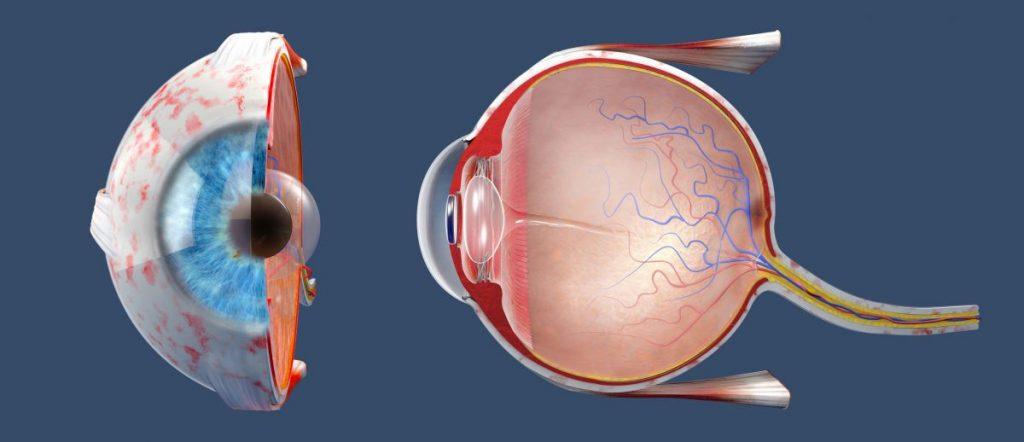 damage cranial nerve eye