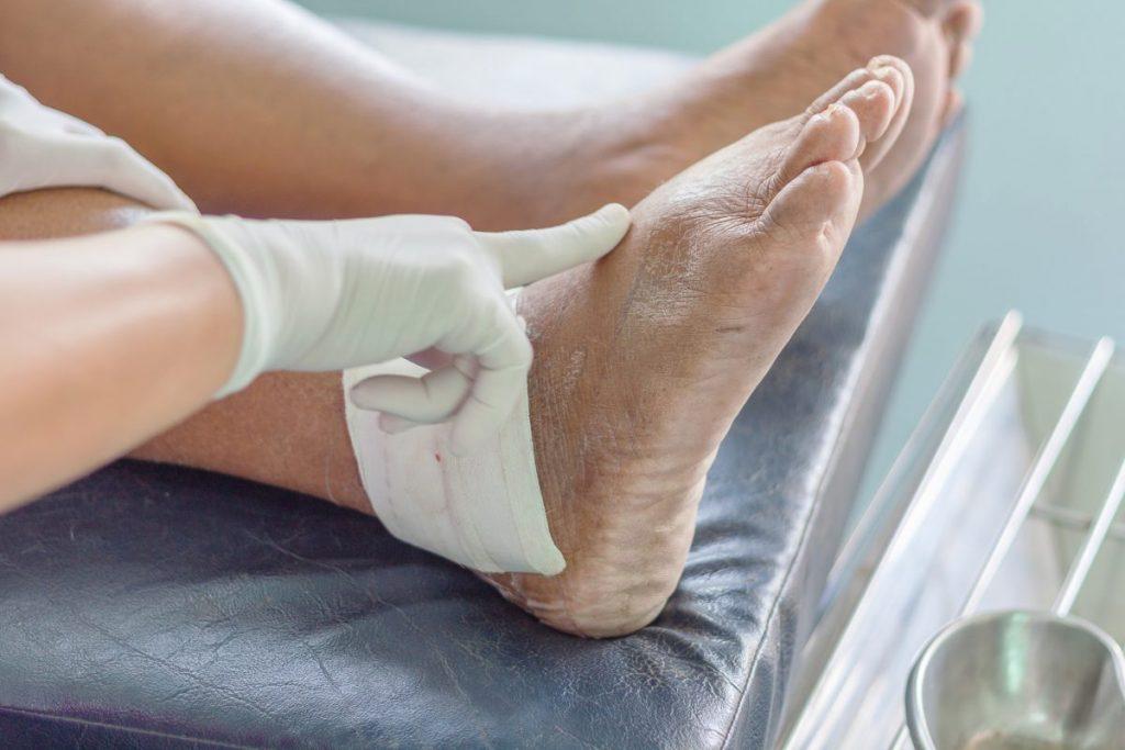 Gout uric acid crystals arthritis