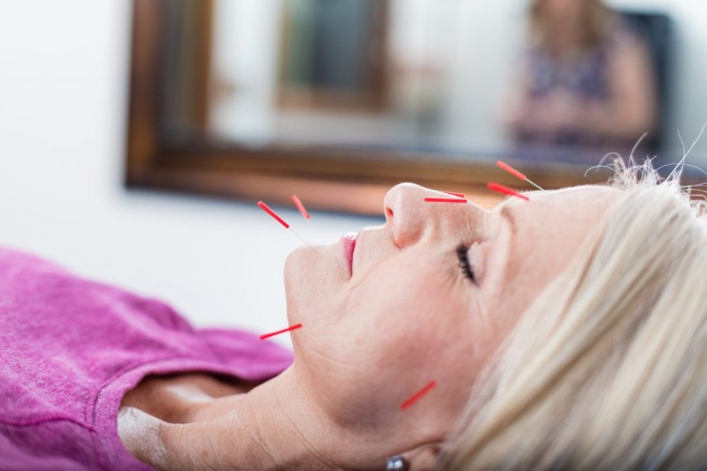 Acupuncture Alternative Treatments