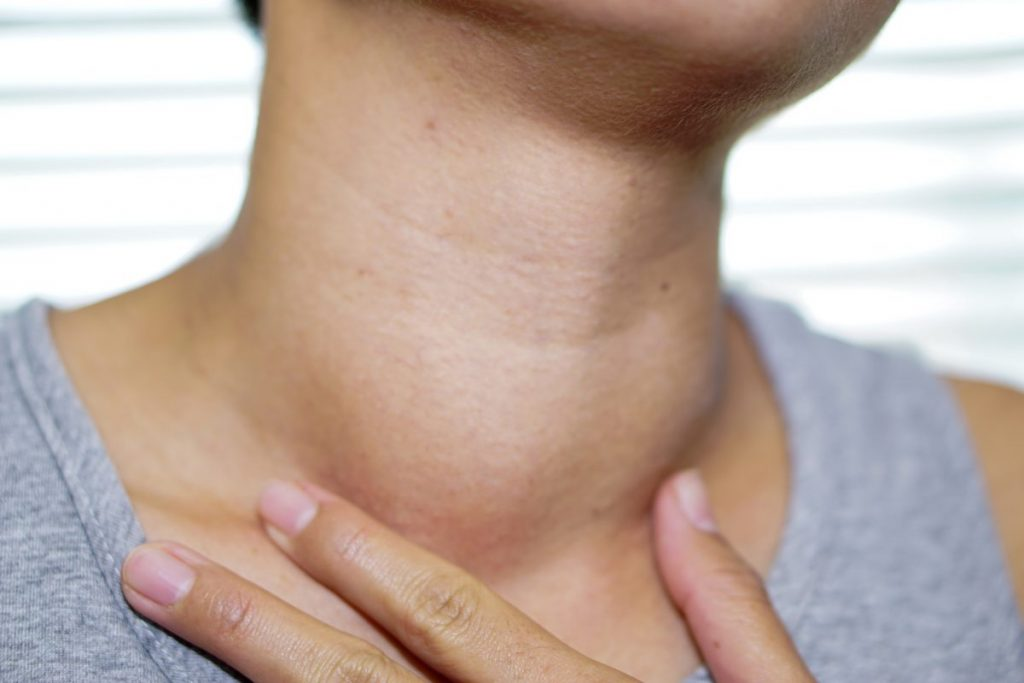 Goiter thyroid problems iodide ions