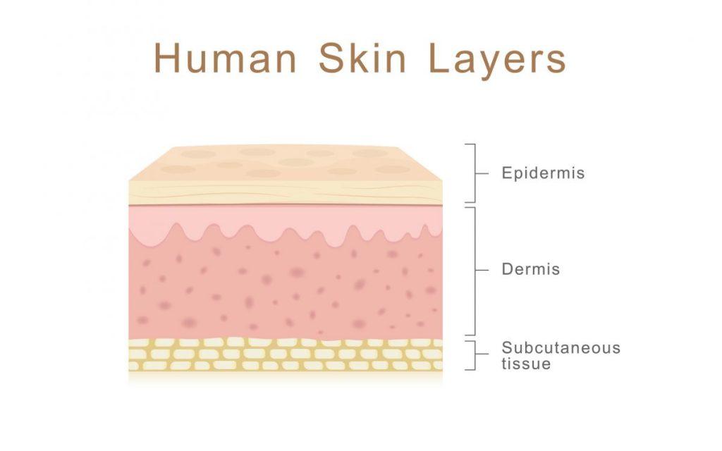 split-thickness skin graft
