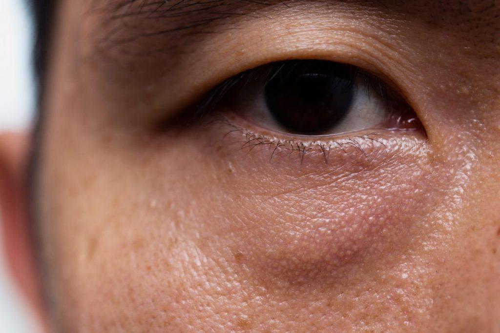 weakness eye muscle ptosis