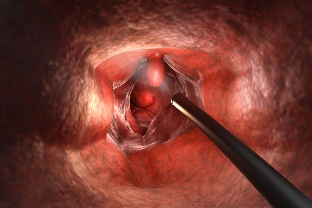 polyposis treatment polyp removal preventative
