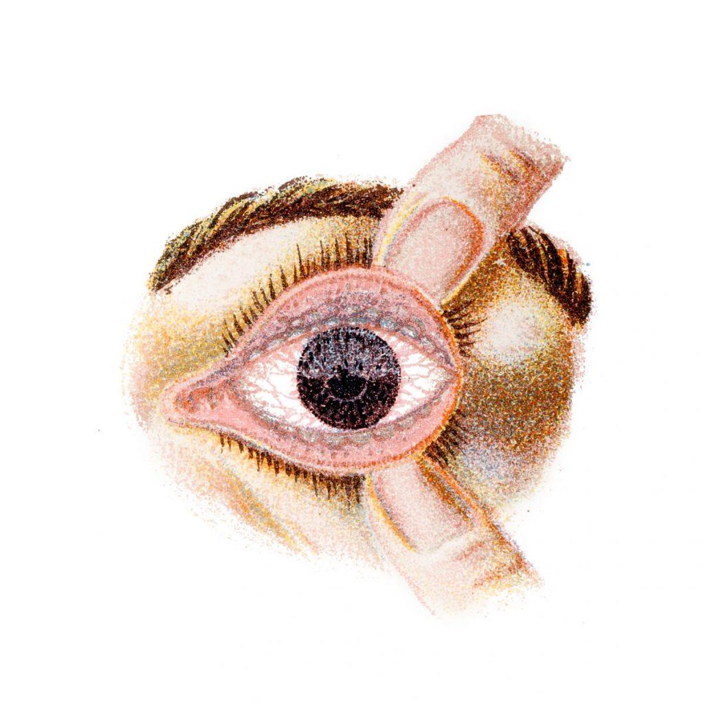 entropion trichiasis trachomatus scarring