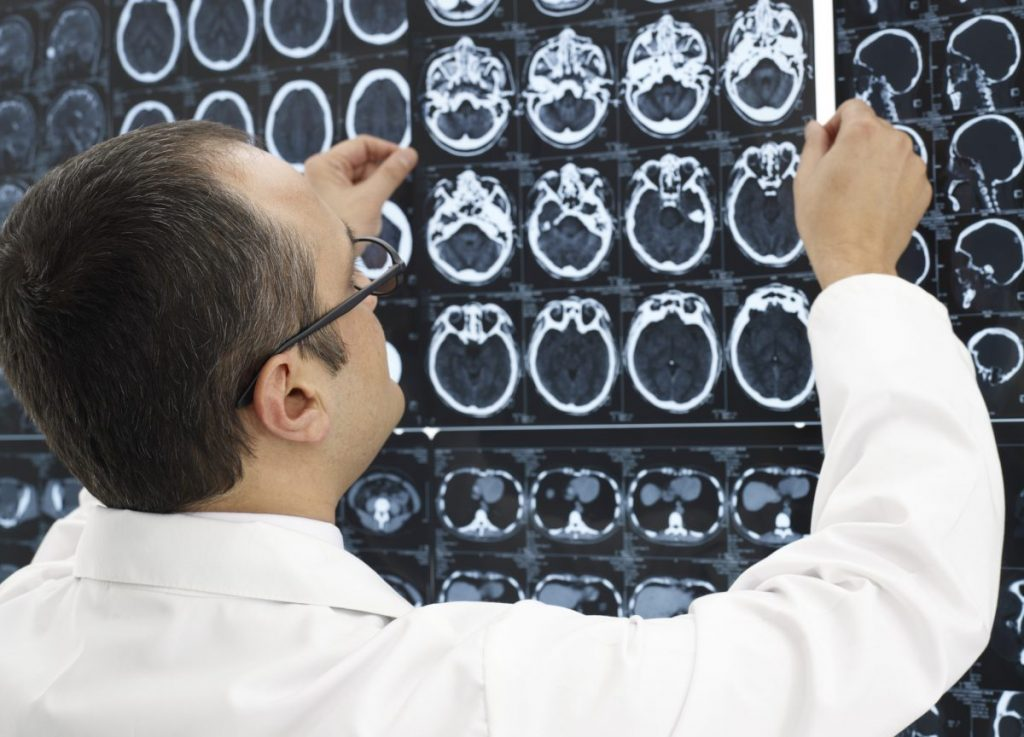 doctor mri scans causes