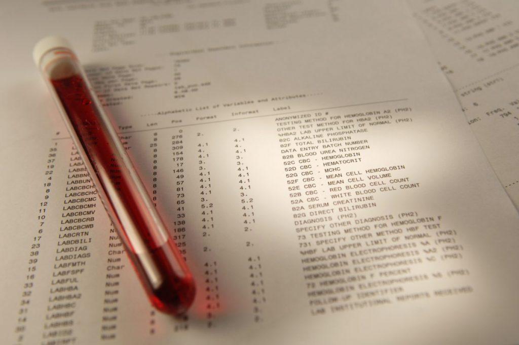 kwashiorkor diagnosis exam diet tests