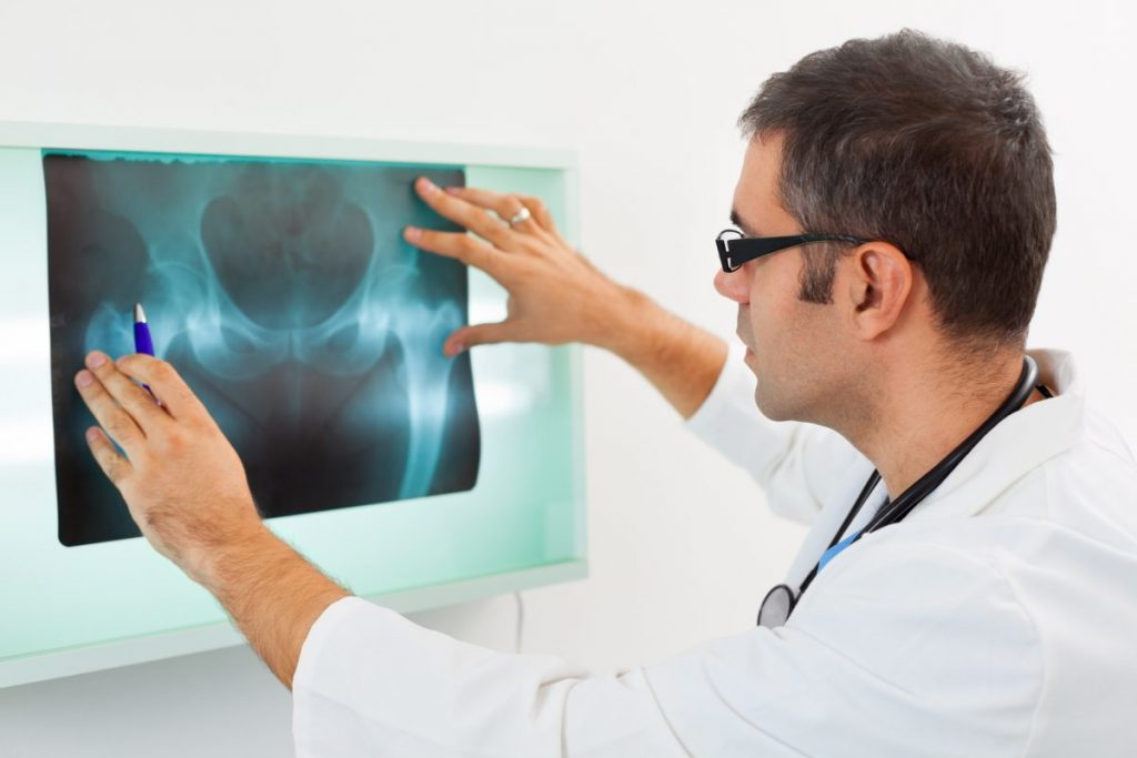 fracture skeletal traction