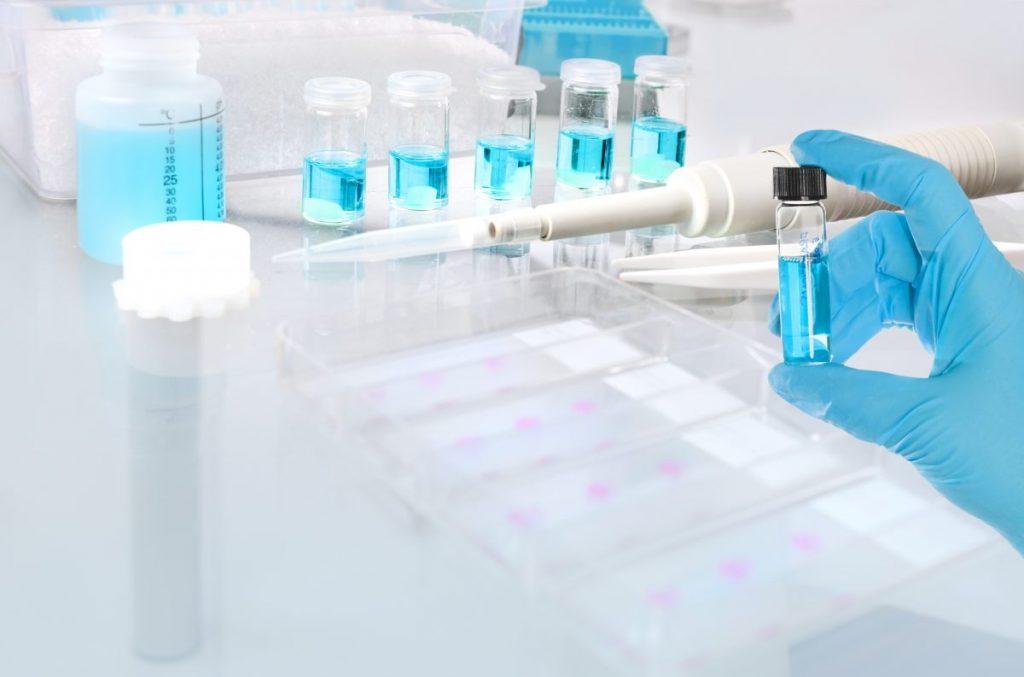 biopsy histologic sample tissue