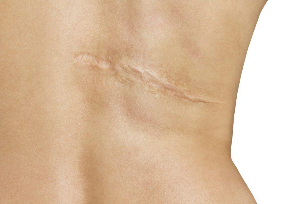 skin graft donor harvested