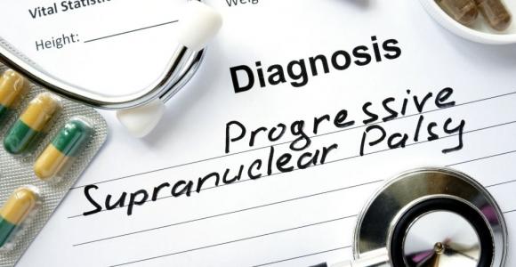 Neurodegenerative Progressive Supranuclear Palsy
