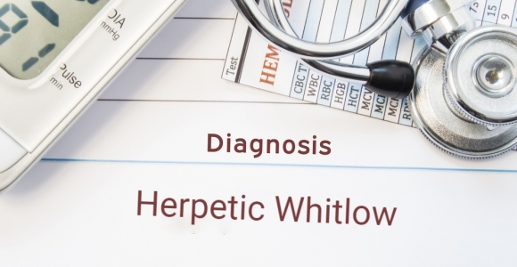 What is Herpetic Whitlow?