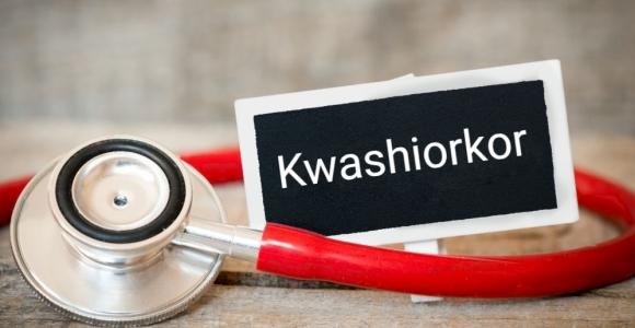 Protein Malnutrition Leading to Kwashiorkor