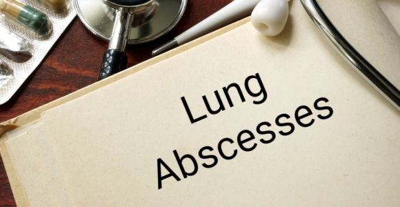 The Causes, Symptoms, and Treatments for Lung Abscesses