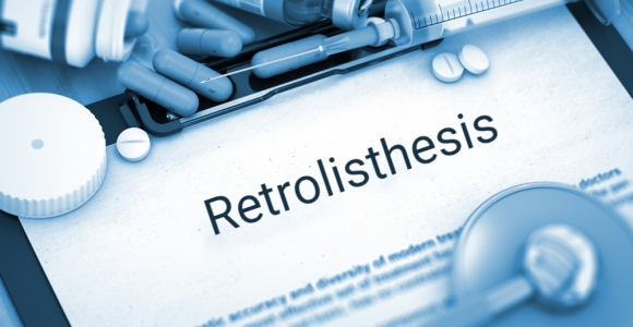 Retrolisthesis Can Result from Back Injury