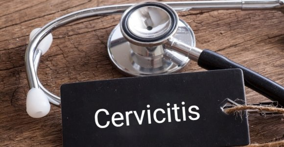 Facts About Cervicitis That Every Woman Should Know