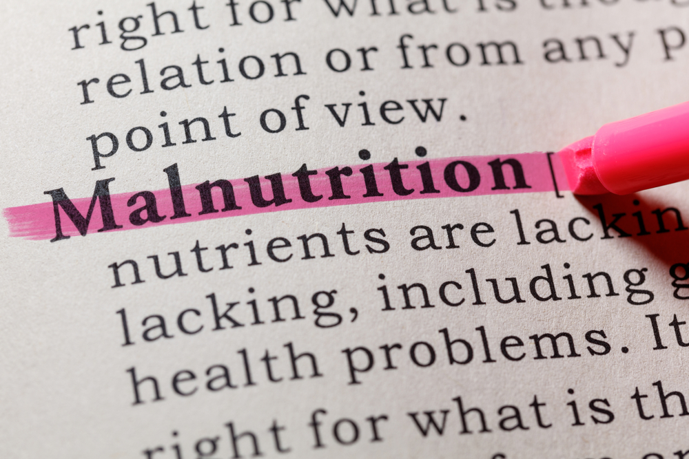 Malnutrition: Causes, Symptoms, and Treatments