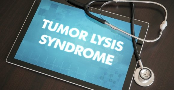 Symptoms, Prevention, and Treatment of Tumor Lysis Syndrome