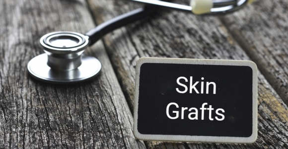 What Are Skin Grafts and How Are They Done?