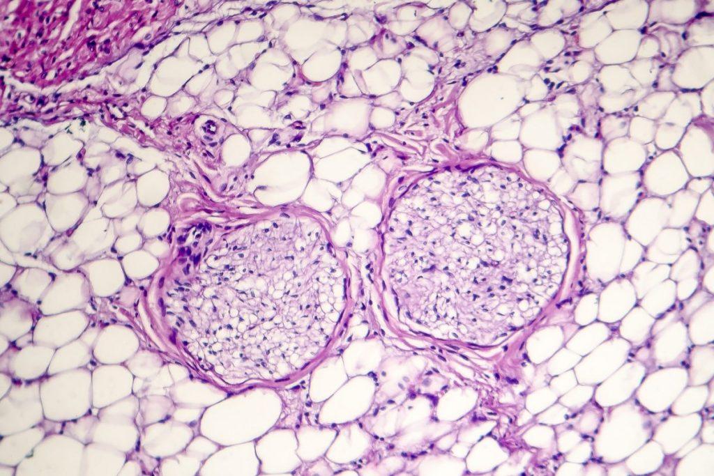 Pericarditis inflammation pericardium complication pus