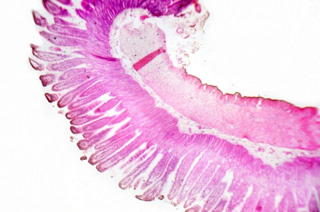 Mucocutaneous hyperpigmentation skin epithelium