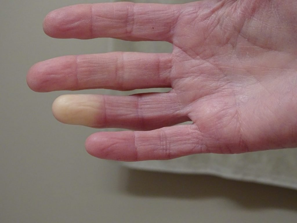 raynauds phenomenon finger color