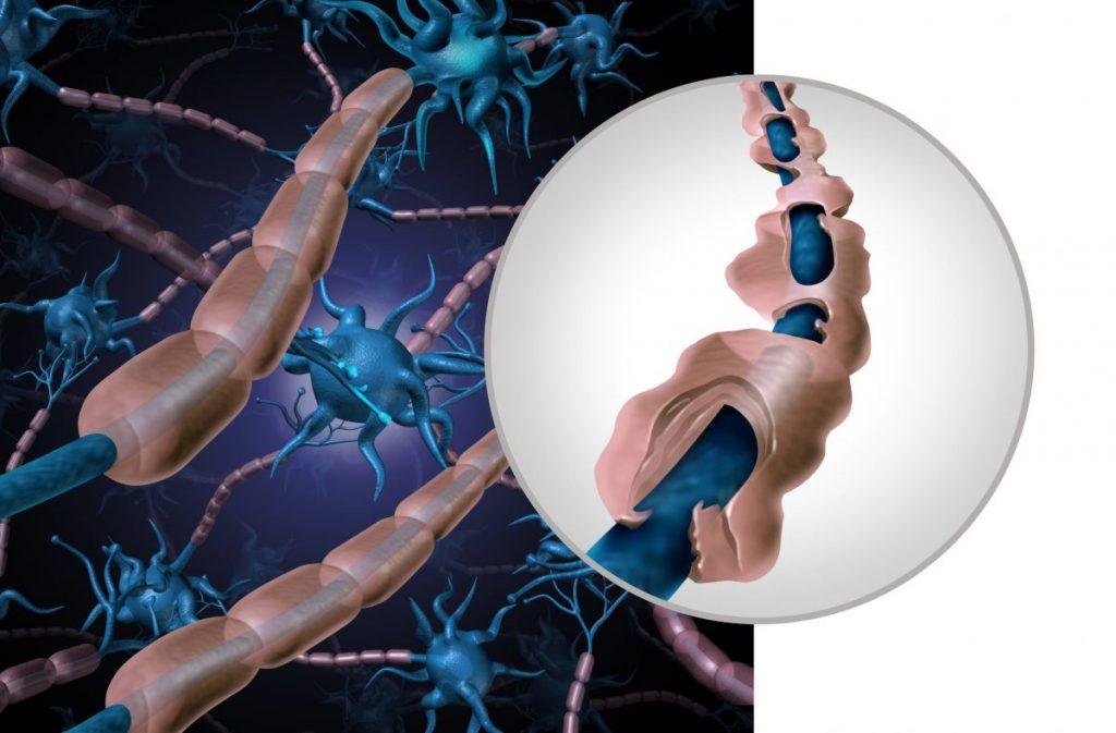 myelin sheath demyelination