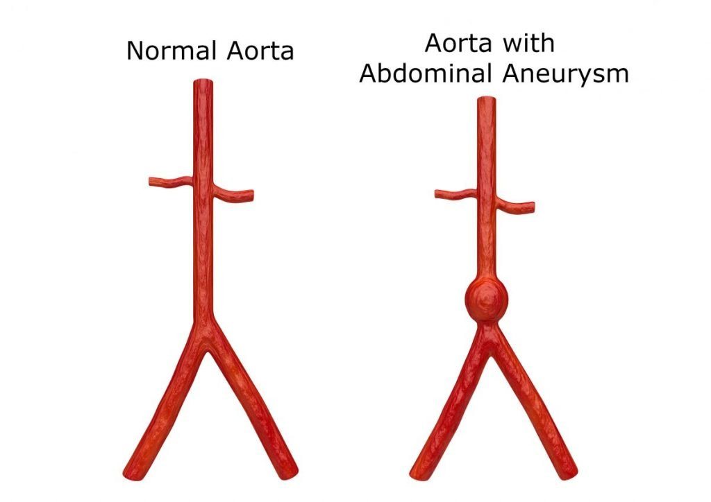 Aortic aneurysm artery sudden life-threatening
