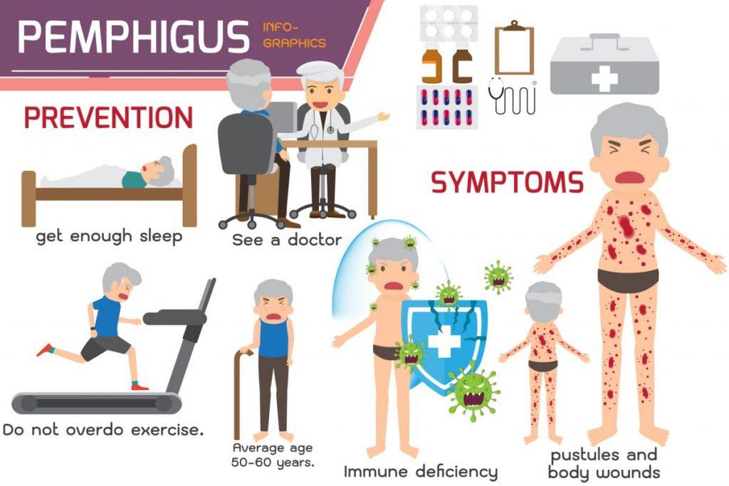Pemphigus autoimmune mucous membrane