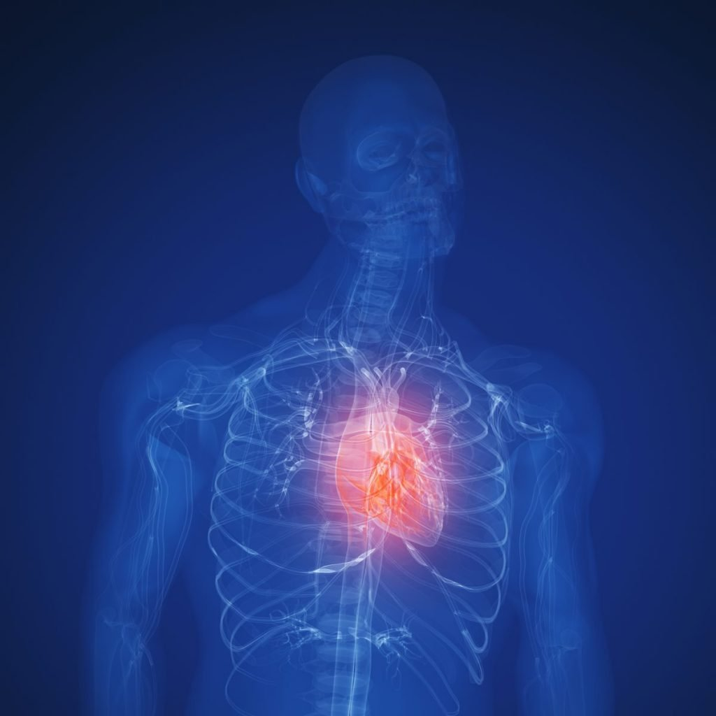 Pericardial tamponade subacute acute chronic