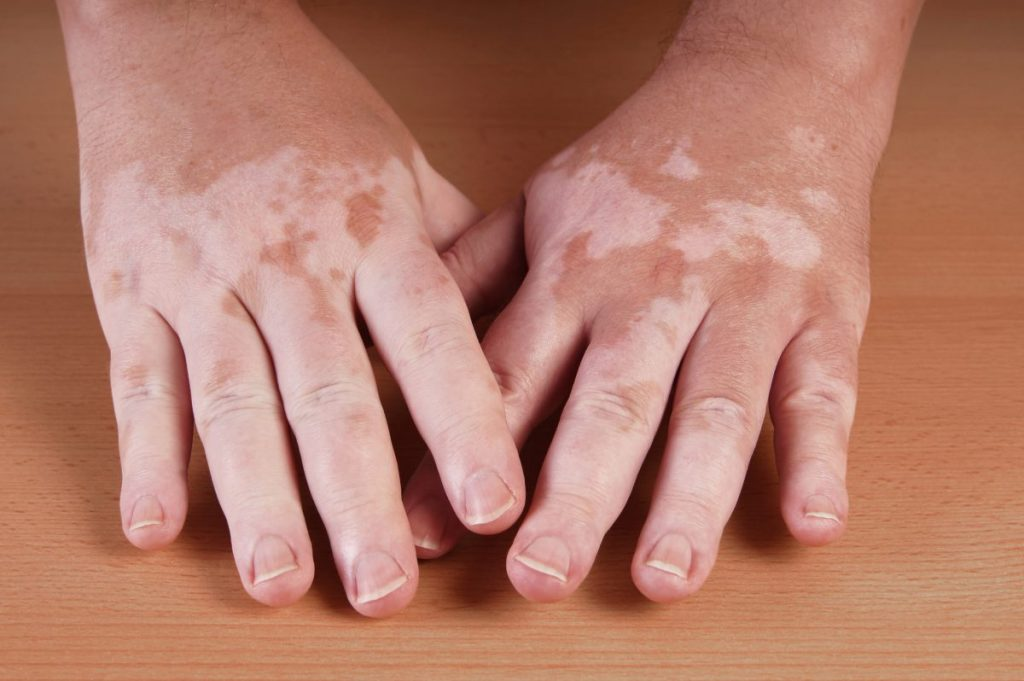 Vitiligo hands dermatological symptoms