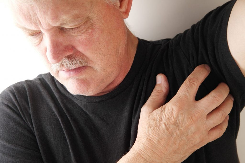 armpit psoriasis skin folds