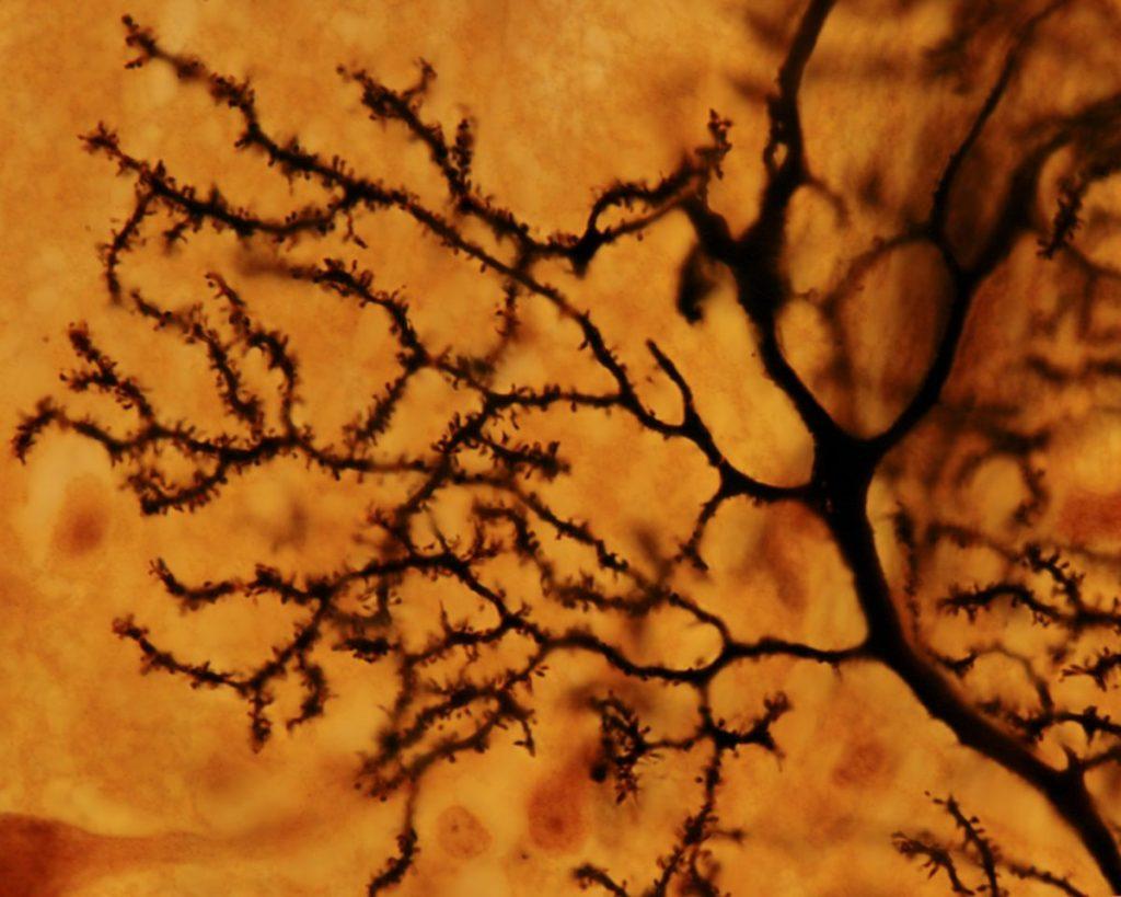 Cerebellar degeneration purkinje neurons