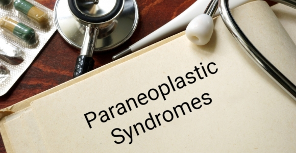 What Are Paraneoplastic Syndromes and How Are They Managed?