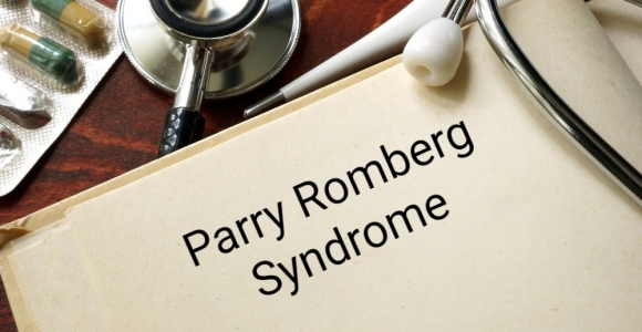 Parry Romberg Syndrome, a Rare Skin Disorder