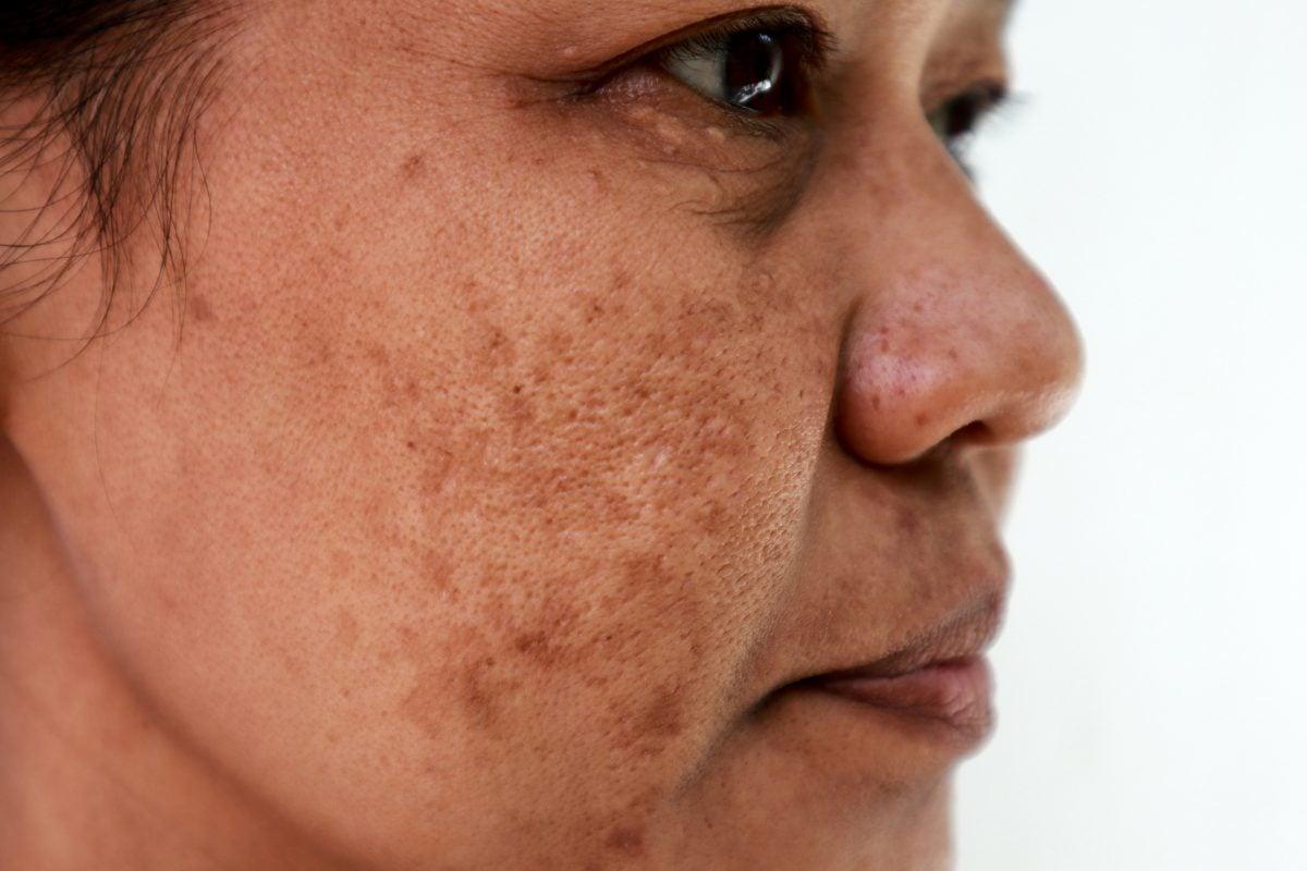 asian woman close-up hyperpigmentation melasma