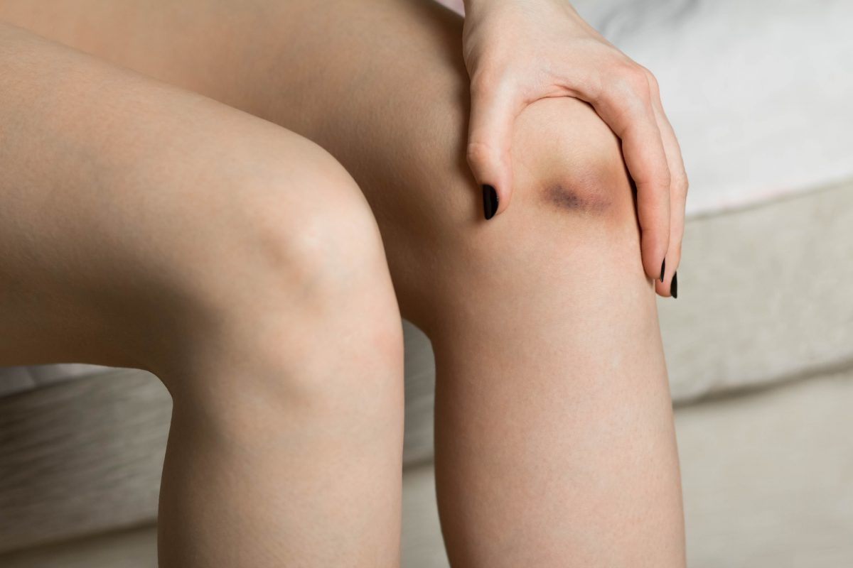 Small bruise on the knee
