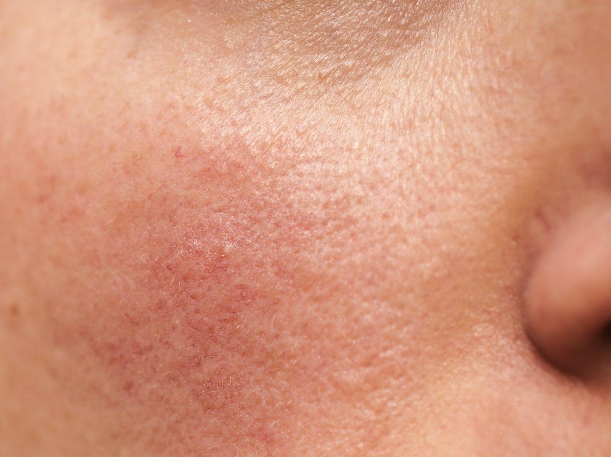 red dry skin pain dermaplaning