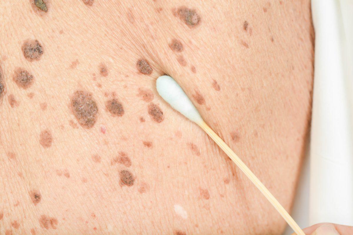 freckles age spots cotton swab
