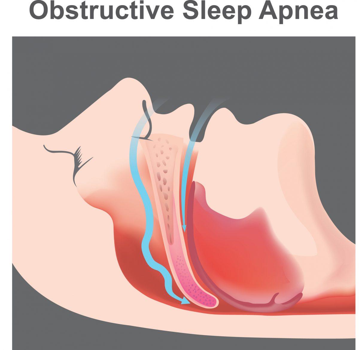 obstructive apnea symptom airway block